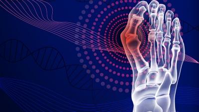 Βλαισός μέγας δάκτυλος (κότσι): Διόρθωση με διαδερμική τεχνική τρίτης γενιάς στο Metropolitan Hospital
