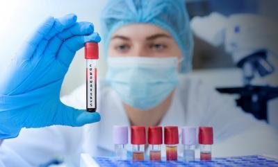 H Τσεχία, στα βήματα της Ουγγαρίας, κινείται προς ρωσικά και κινεζικά εμβόλια