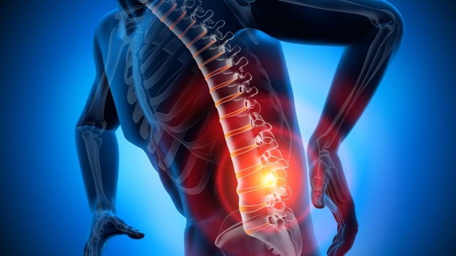 Οσφυαλγία – Αυχεναλγία: Στοχευμένη θεραπεία στο Ιατρείο Πόνου του Metropolitan Hospital