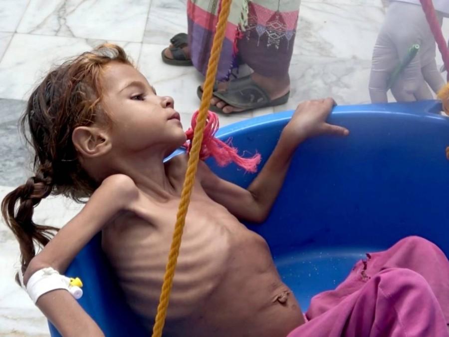 ΟΗΕ: Σε πρωτόγνωρα επίπεδα ο υποσιτισμός παιδιών στην Υεμένη