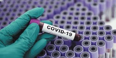Η κολχικίνη και η ιντερφερόνη δεν βοηθούν τους ασθενείς με covid - Τι δείχνουν δύο μελέτες