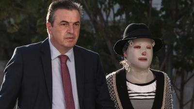 Δίκη για επίθεση με βιτριόλι - Η κατάθεση του ψυχίατρου της Ιωάννας: Δεν έχω ξανασυναντήσει άνθρωπο χωρίς πρόσωπο