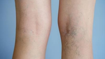 Αιμοδυναμική θεραπεία των κιρσών των κάτω άκρων