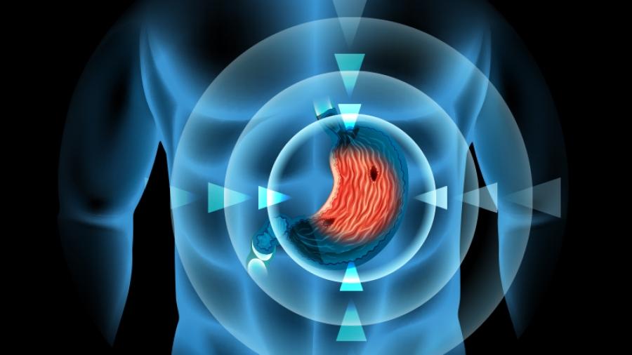 Τι πρέπει να ξέρετε για το έλκος: Αιτιολογία, διάγνωση και θεραπεία