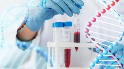 Η κολχικίνη στη μάχη κατά του κορωνοϊού – Ποιους ασθενείς αφορά