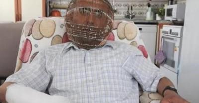Τουρκία: Κλείδωσε το κεφάλι του σε... κλουβί για να κόψει το κάπνισμα
