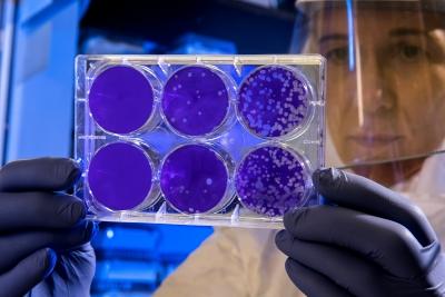 ΠΟΥ: Πρώτο κρούσμα του θανατηφόρου μολυσματικού ιού Μάρμπουργκ στην Αφρική