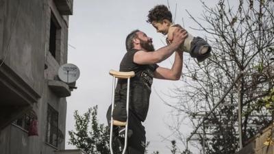 Η βραβευμένη φωτογραφία που συγκλονίζει: Ο ακρωτηριασμένος πατέρας και το παιδί χωρίς χέρια και πόδια