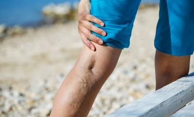 Κορωνοϊός: Ποια είναι τα συμπτώματα της θρόμβωσης