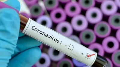 New York Times: Μήπως ο Fauci έχει παραπλανήσει την κοινή γνώμη για την ανοσία της αγέλης; - Πρέπει να εμβολιαστεί το 80%-90% του πληθυσμού