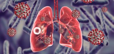 Αυξήθηκαν οι θάνατοι από φυματίωση λόγω Covid-19 - Για παράπλευρες απώλειες κάνει λόγο ο ΠΟΥ