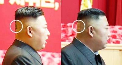 Τι συμβαίνει με την υγεία του Kim; Το πράσινο σημάδι στο κεφάλι - Οργιάζουν οι φήμες