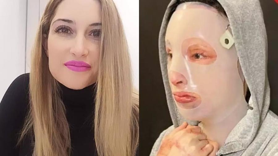 Επίθεση με βιτριόλι - Ομολόγησε η 35χρονη την επίθεση στην Ιωάννα