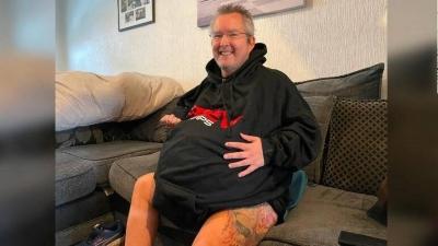 Νεφροί 40 κιλών ο καθένας: Βρετανός με σπάνια πάθηση υποβάλλεται  σε δύσκολη επέμβαση