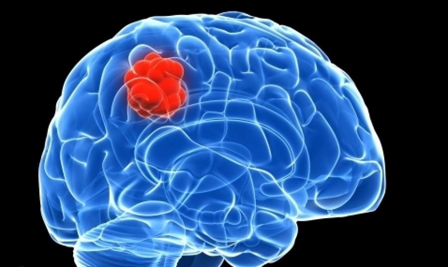Κακοήθεις όγκοι εγκεφάλου: Όταν «λάμπουν» έχουν διπλάσια πιθανότητα ολικής αφαίρεσης και καλύτερη πρόγνωση