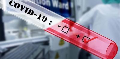Ουρές στο Σύνταγμα για δωρεάν rapid test, ενόψει των αλλαγών στις μετακινήσεις από Δευτέρα 5 Ιουλίου