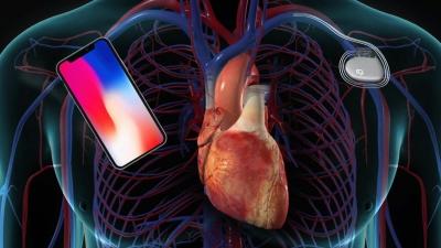 Οι τηλεφωνικές συσκευές της Apple επηρεάζουν τη λειτουργία του βηματοδότη