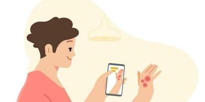 Η Google έγινε δωρεάν δερματολόγος χάρη στην τεχνητή νοημοσύνη της