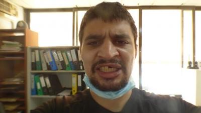 Χαλκίδα: Άγρια επίθεση στον δημοσιογράφο Μιχάλη Τσοκάνη - Τι καταγγέλλει για τον ξυλοδαρμό και τα σπασμένα δόντια